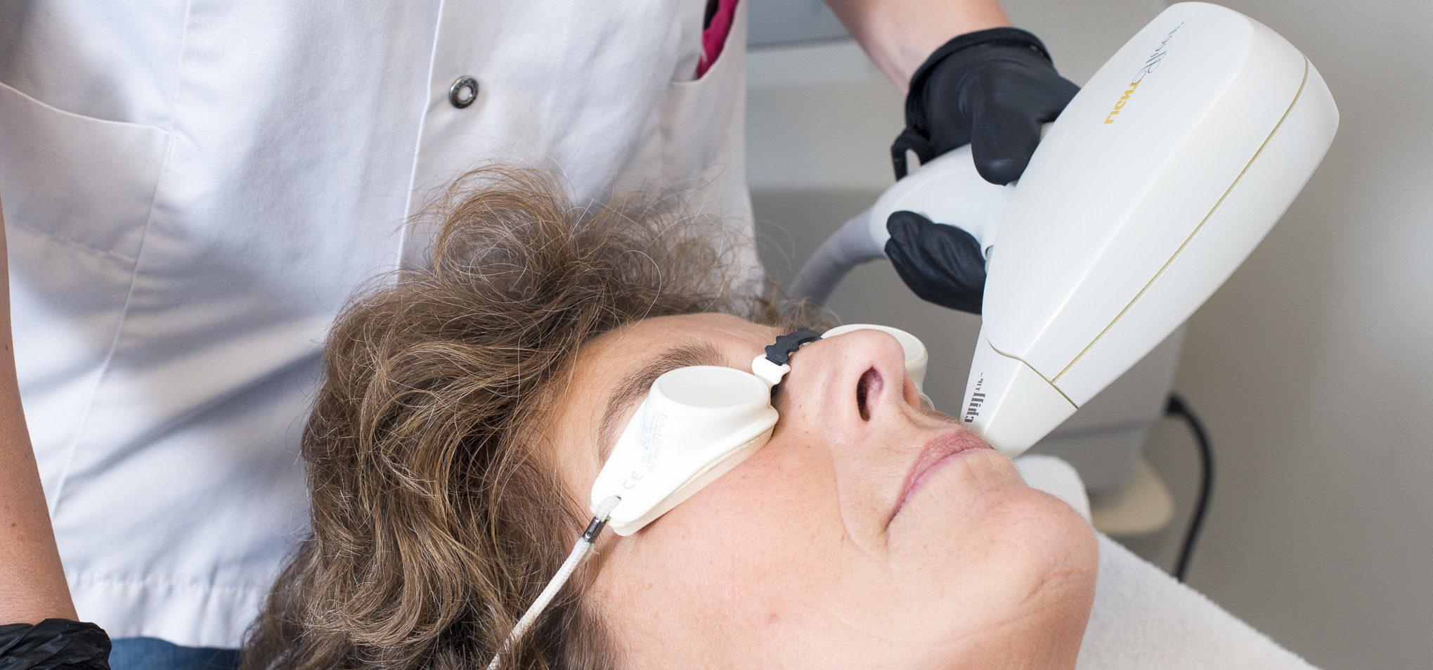 Foto laserbehandeling bovenlip vrouw