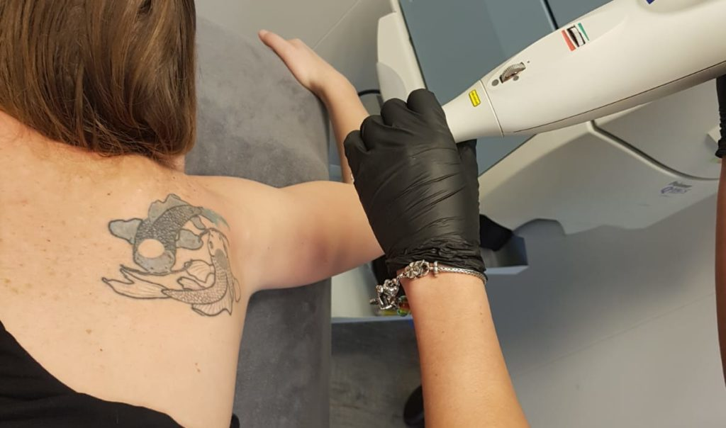 Schouder tatoeage van twee vissen klaar om te worden weg gelaserd.
